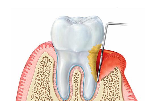 Erkrankungen des Zahnhalteapparats