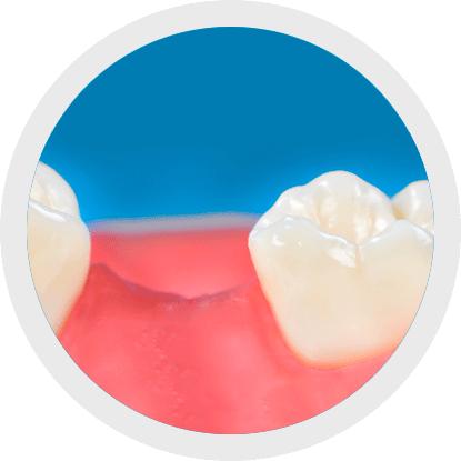 Reinigung von Zahnlücken mit Interdentalbürsten