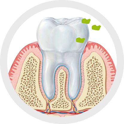Welche Beziehung besteht zwischen Mundgeruch und Interdentalhygiene?