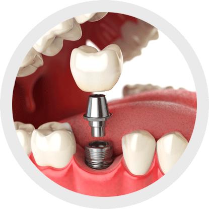 Anwendung von Interdentalbürsten zur Reinigung von Zahnimplantaten