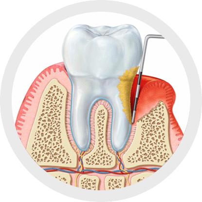 Was ist die Ursache für Erkrankungen des Zahnhalteapparats?